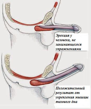 Упражнения для мышц тазового дна для мужчин