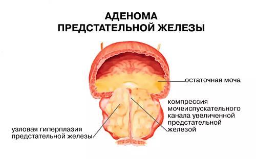 аденома простаты причины заболевания