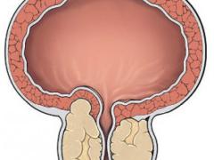 Основные причины болезни аденома простаты и ее осложнения