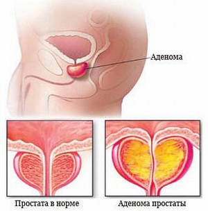 лечение аденомы простаты народными методами
