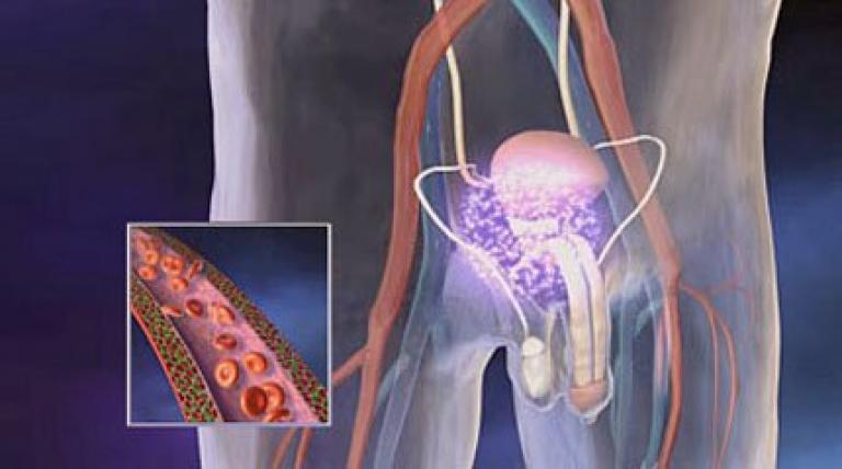 Помогает ли лечение простатита магнит