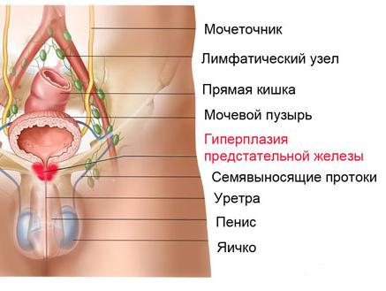 Операция ТУР аденомы простаты