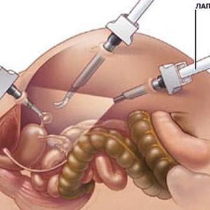 laparoskopicheskaya-operaciya-predstatelnoj-zhelezy