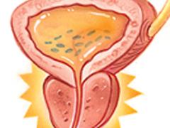 Небактериальный хронический простатит: симптомы, лечение
