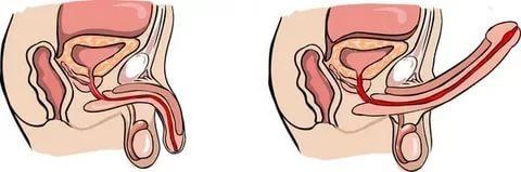 приапизм у мужчин причины лечение