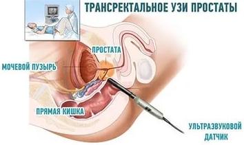 uzi-prostaty