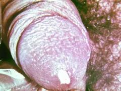 Острая гонорея (триппер): симптомы, диагностика, лечение