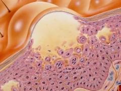 Гонорея половых органов: возможные осложнения и последствия