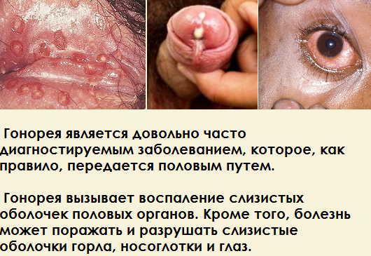Лечение гонореи у мужчин