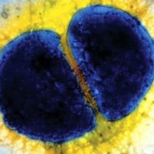 Как протекает свежая гонорея и как ее распознать и вылечить?