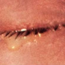 Методы лечения гонореи глаз