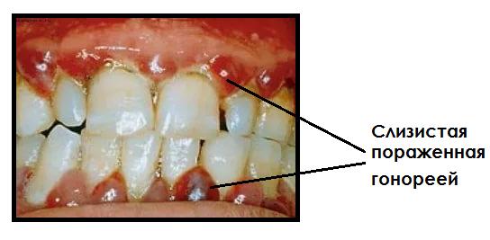 Гонорея рта фото, лечение