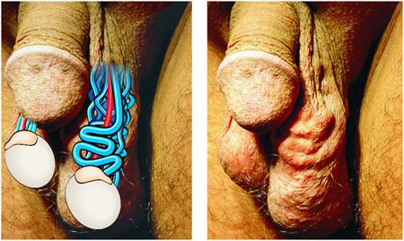 Варикоз яичек у мужчин фото