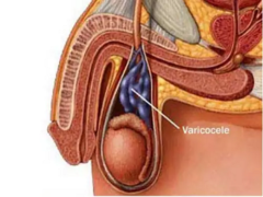 Как лечить варикоз яичек (варикоцеле)
