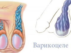 Профилактика варикоза яичек у мужчин