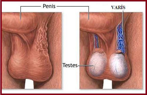 Профилактика варикоцеле