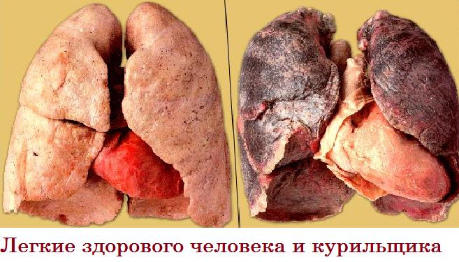 лёгкие курильщика и некурящего фото
