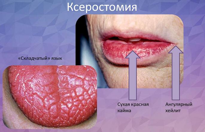 Синром шергена