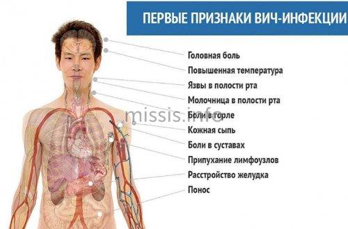 Первые симптомы вич инфекции у женщин