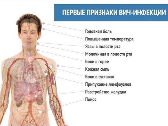 Симптомы вич лечение