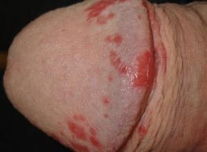 Появились красные пятна на половом члене, что делать, чем лечить?