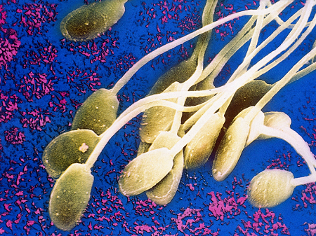 Воняет сперма