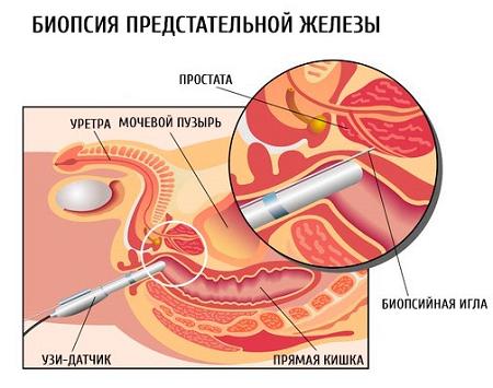 Киста в предстательной железе биопсия