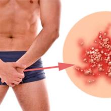 Пупырышки на половом члене у мужчин: фото, лечение. Как избавиться, что делать