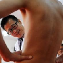 Почему появляется зуд полового члена и как от него избавиться