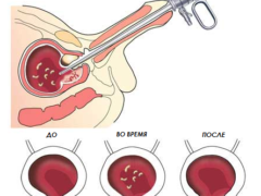 Трансуретральная резекция аденомы простаты