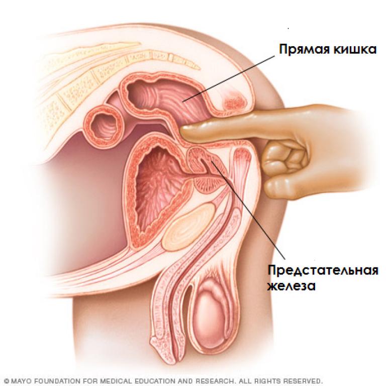 Чем опасен для женщин простатит препараты для мужчин при хроническом простатите
