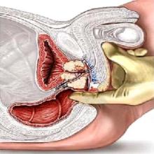 Простатодиния симптомы и лечение