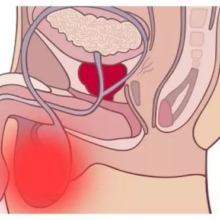 Почему болят яички у мужчины: причины, список вероятных заболеваний